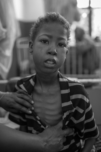 A young patient with Tuberculosis. Banadir Hospital. Mogadishu, Somalia.