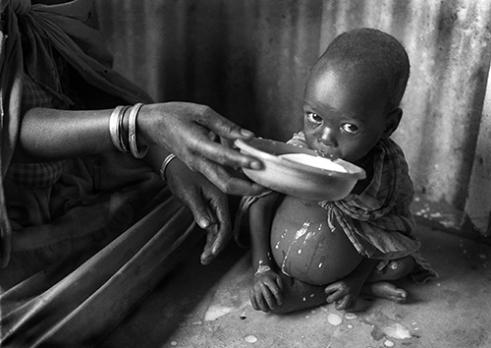 Feeding clinic for malnourished children. Namalu, eastern Uganda, 1987.