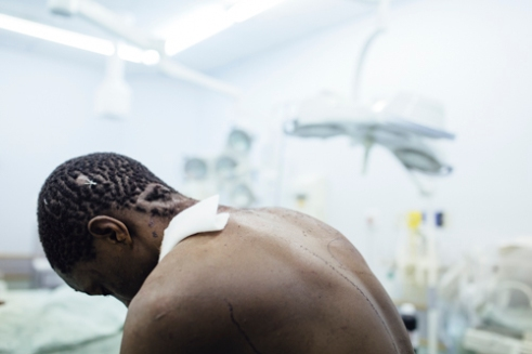 The scar behind the left ear of the young man is a reminder of previous visit to the hospital. This time the man was brought to the casualty of Katutura after he had been cut with a machete. According to a WHO report from 2011, Namibia has the fifth highest alcohol consumption in the continent of Africa. The reasons behind alcohol abuse and violence are not self-explanatory. Some of the reasons are seen to be linked with unemployment and poverty as well as the rapid growth of the city of Windhoek. In 2014 both the unemployment as well as the national poverty rates of Namibia was 28 percent.