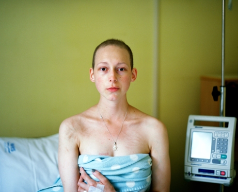 After many complications at the end of the 6 months treatment, self-portrait on my final day of chemotherapy where I had endured many serious painful infections at Eastbourne DGH, England.