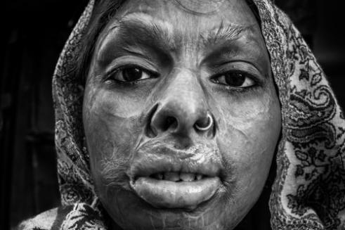 Acid scarred woman