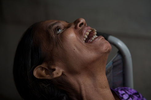 Champa hospital provide health care for people who is effected by leprosy in Champa, India, Aug 2014
