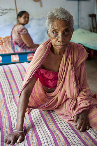 Eldry people who effected by leprosy living togather in a old care house in Bankura