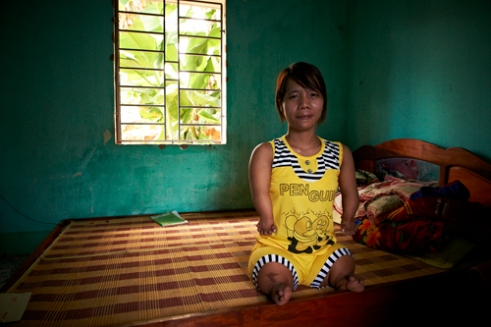Le Thi Hoa (Female, born in 1985), was born with six fingers that were bunched up like grapes. She looks very different from most other midgets, with her body frame much resembling a torso sculpture that moves. Her older sister suffers from similar symptoms and together, with much difficulty, manage to live by running a small corner store. Their father fought in the War from 1963 to 1972, and during that period was exposed to the Agent Orange, countless times. (Dec. 8, 2012)