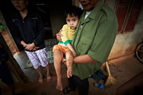 Le DInh Nam (Male, born in 2009) has a congenital deformation, with four toes on the left foot and deformed right foot toes. He has undergone surgery before, but his tibia continue to deform while fibula seem to have disappeared. This boy's father was not directly involved in the War, but was hit on his shoulder with a piece of land mine that had exploded while cleaning out land mines from an area heavily contaminated by the chemical weapon. This boy is one of the many victims of the environmental pollution caused by the Agent Orange. (Dec. 8, 2012)