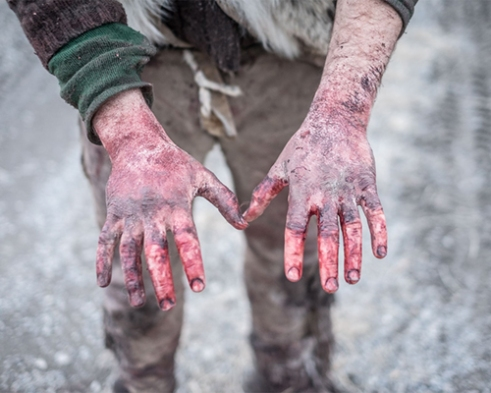 Alex's hands after a day of scavenging buffalo.