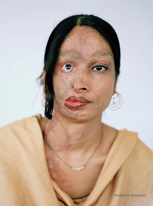 20 years old. Over 30 operations. Attacked by a boy on her way to school.
