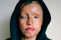 Saira was attacked with acid by her fiance after refusing to move in with him before the wedding.